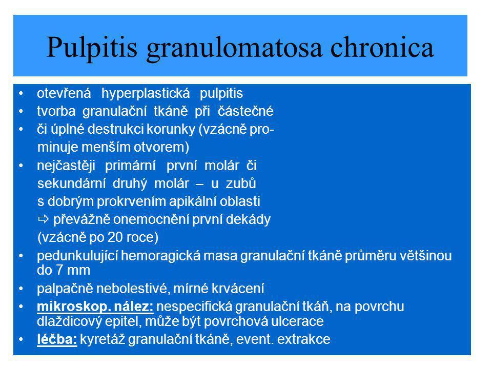 Pulpitis granulomatosa chronica