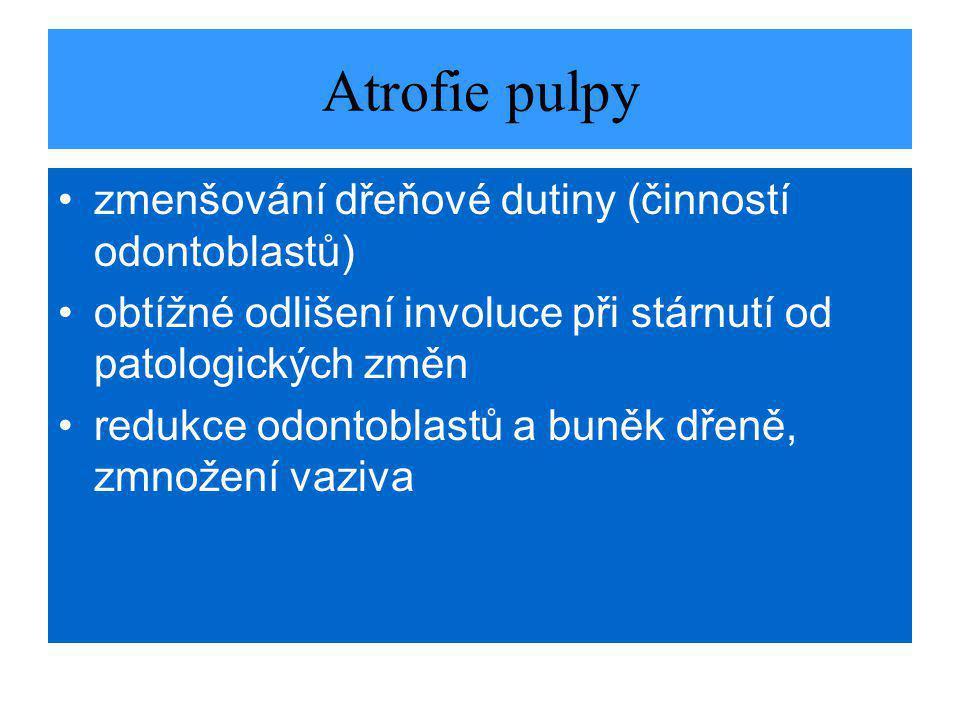 Atrofie pulpy zmenšování dřeňové dutiny (činností odontoblastů)