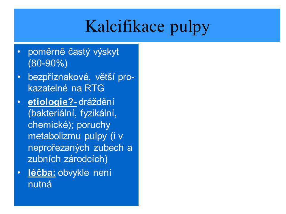 Kalcifikace pulpy poměrně častý výskyt (80-90%)