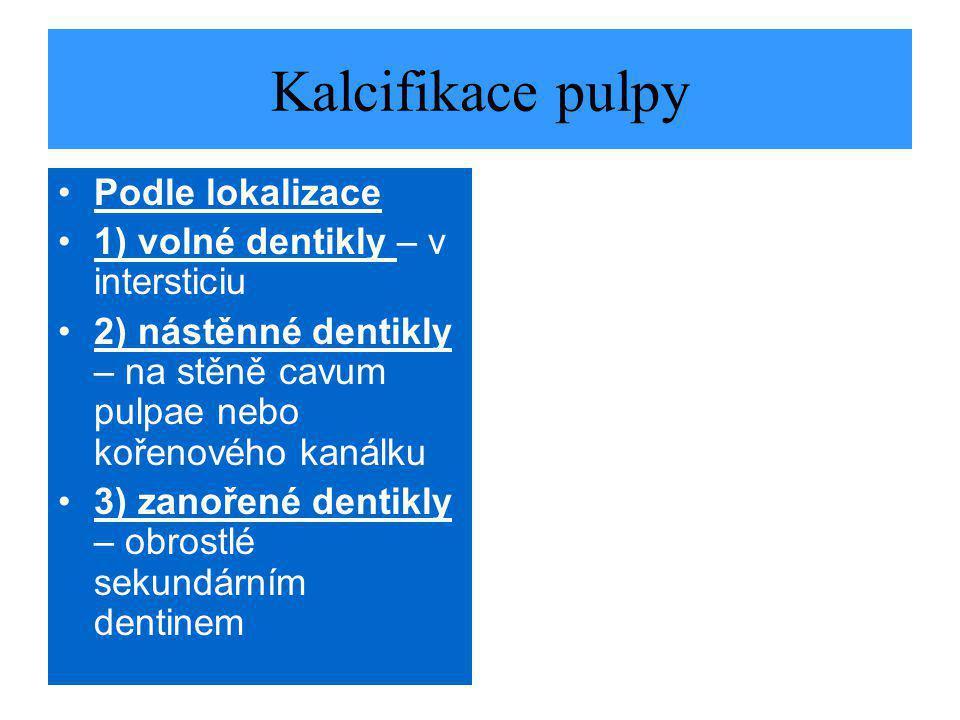 Kalcifikace pulpy Podle lokalizace 1) volné dentikly – v intersticiu