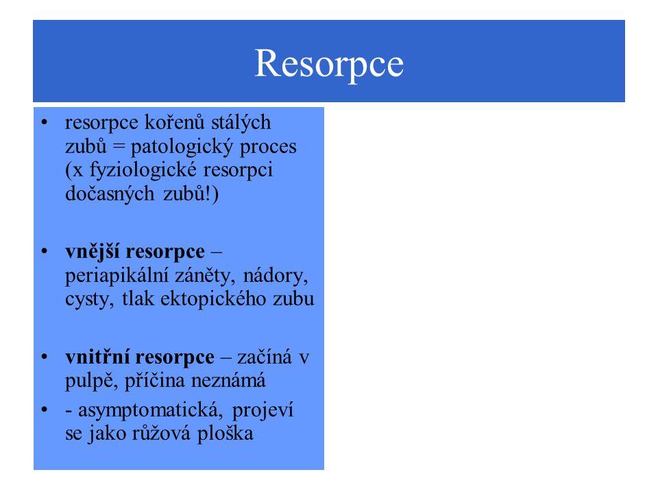 Resorpce resorpce kořenů stálých zubů = patologický proces (x fyziologické resorpci dočasných zubů!)