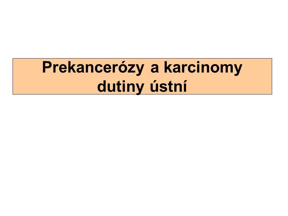 Prekancerózy a karcinomy dutiny ústní