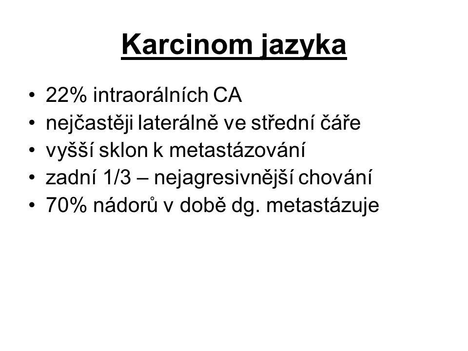 Karcinom jazyka 22% intraorálních CA