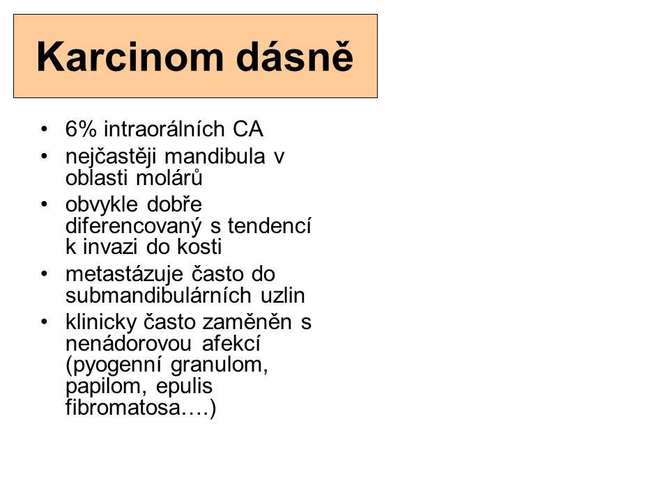 Karcinom dásně 6% intraorálních CA