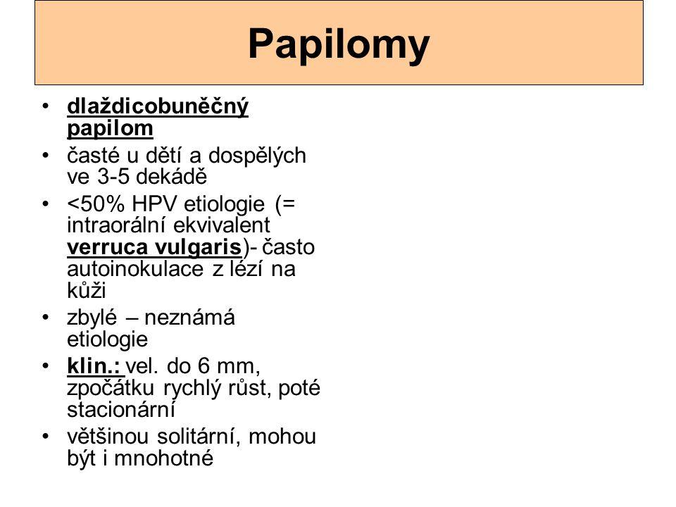 Papilomy dlaždicobuněčný papilom