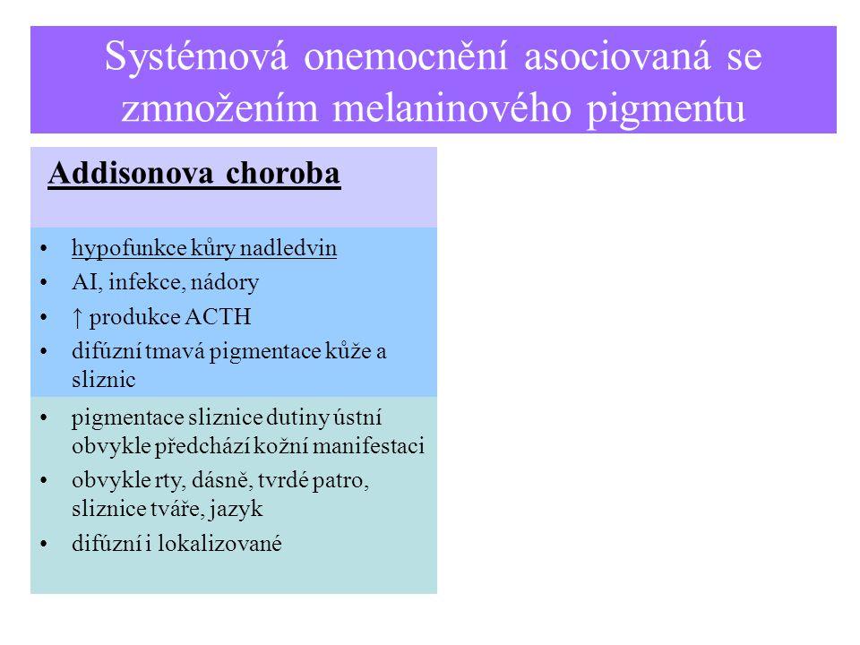 Systémová onemocnění asociovaná se zmnožením melaninového pigmentu