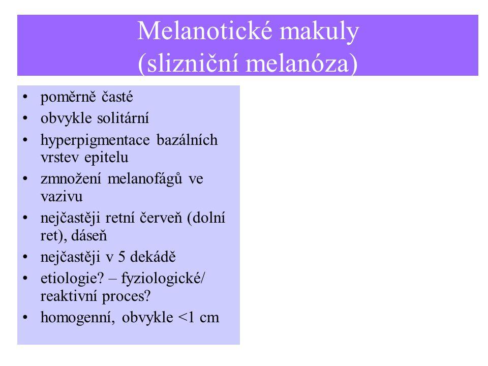 Melanotické makuly (slizniční melanóza)