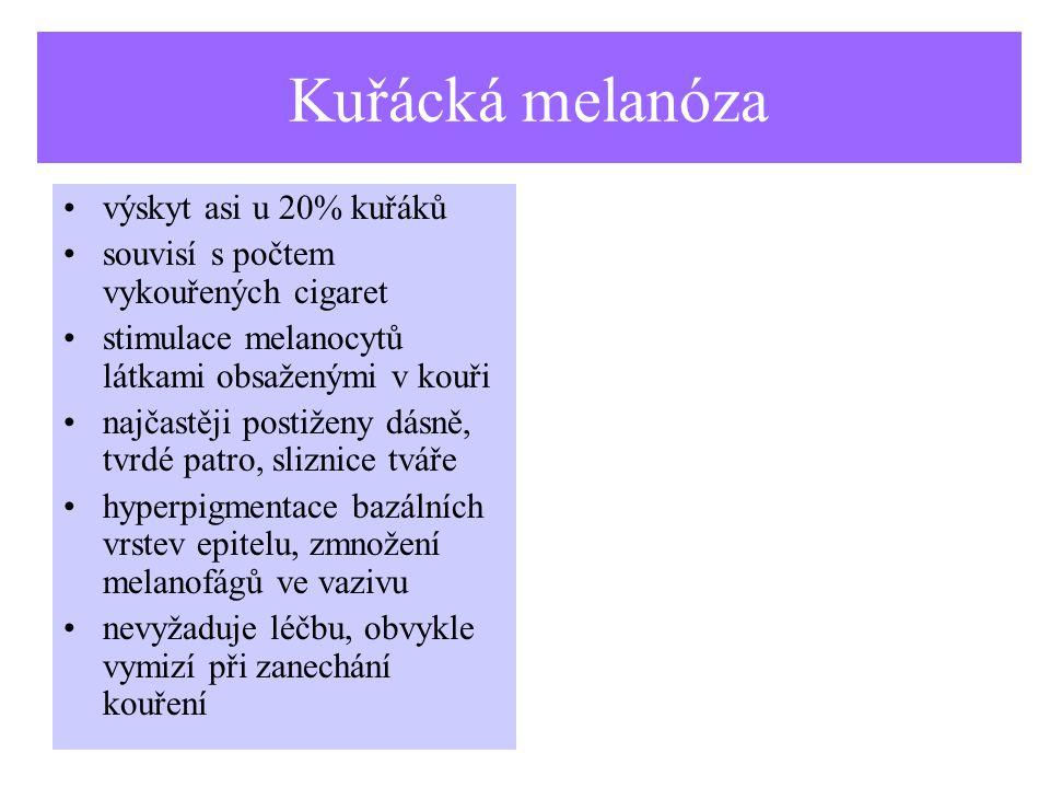Kuřácká melanóza výskyt asi u 20% kuřáků