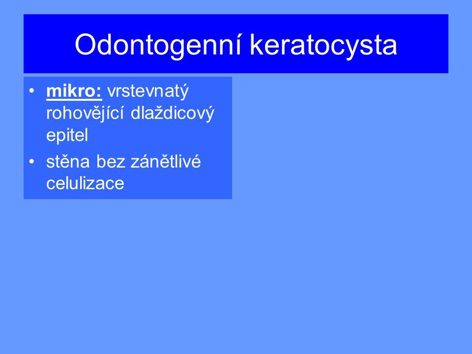 Odontogenní keratocysta