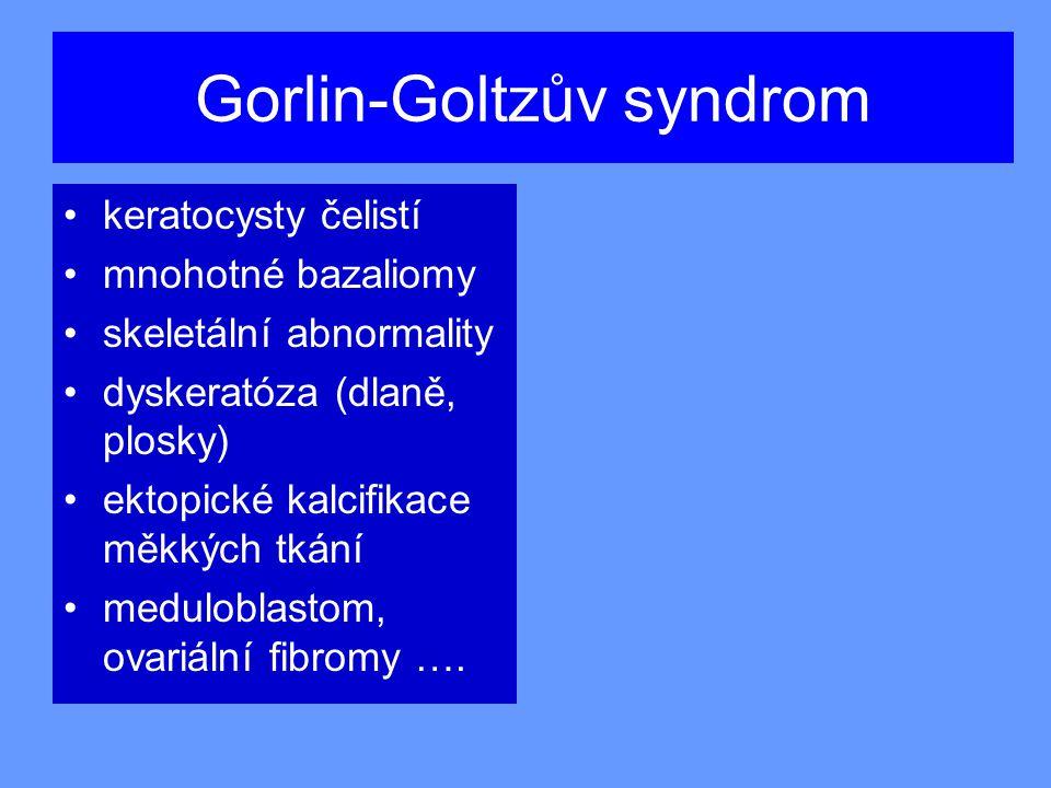 Gorlin-Goltzův syndrom
