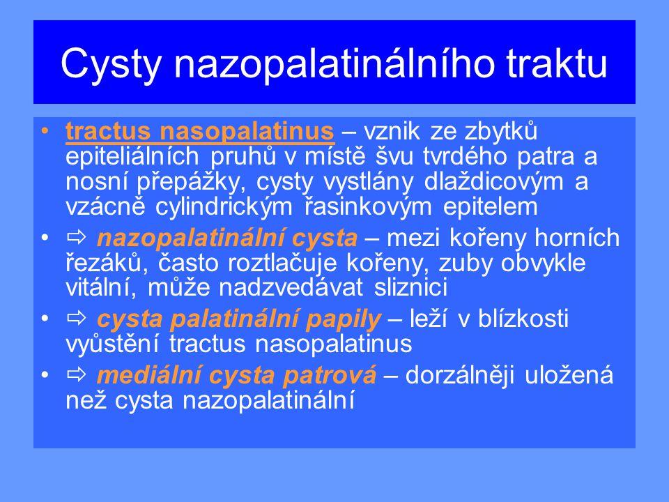 Cysty nazopalatinálního traktu