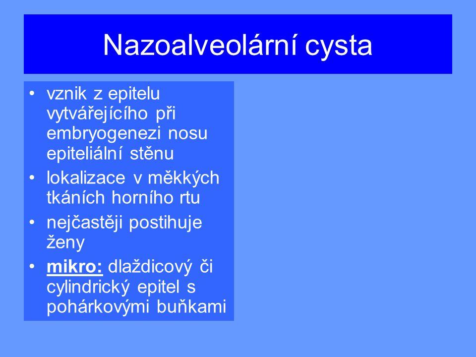 Nazoalveolární cysta vznik z epitelu vytvářejícího při embryogenezi nosu epiteliální stěnu. lokalizace v měkkých tkáních horního rtu.