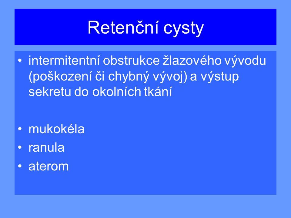 Retenční cysty intermitentní obstrukce žlazového vývodu (poškození či chybný vývoj) a výstup sekretu do okolních tkání.