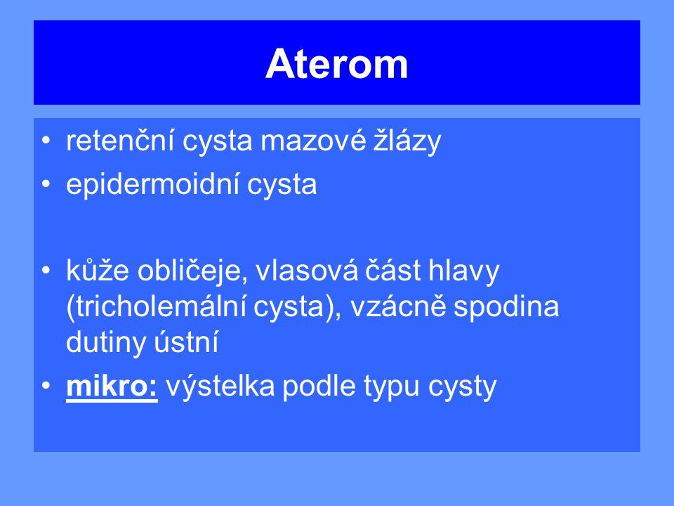 Aterom retenční cysta mazové žlázy epidermoidní cysta