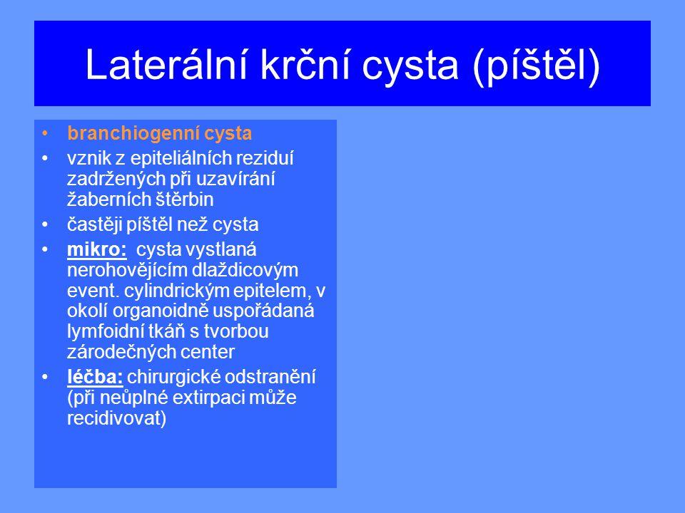 Laterální krční cysta (píštěl)