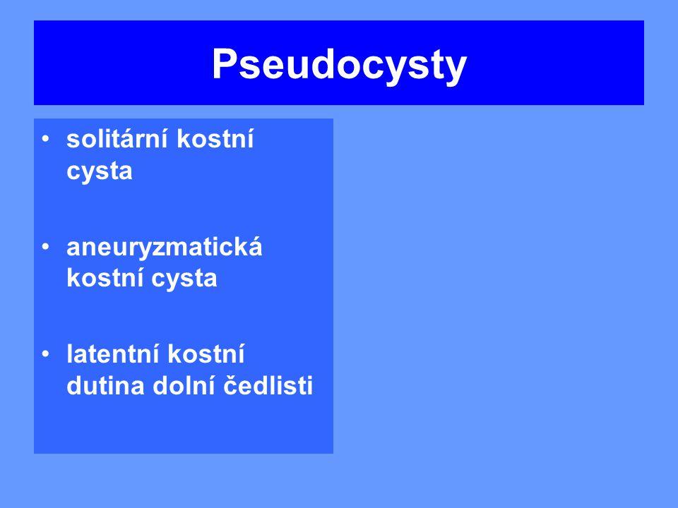 Pseudocysty solitární kostní cysta aneuryzmatická kostní cysta
