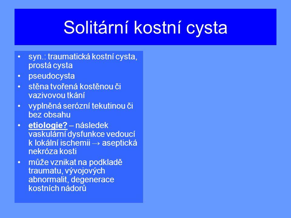 Solitární kostní cysta