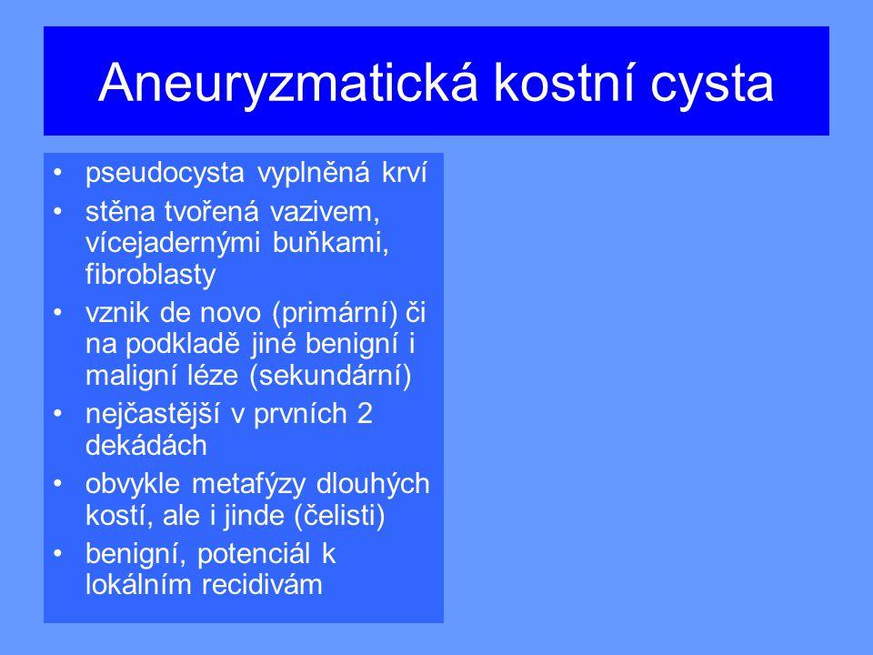 Aneuryzmatická kostní cysta