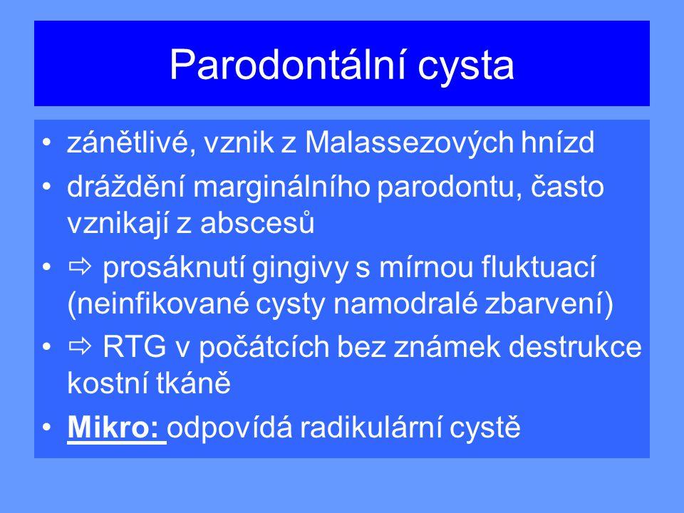 Parodontální cysta zánětlivé, vznik z Malassezových hnízd