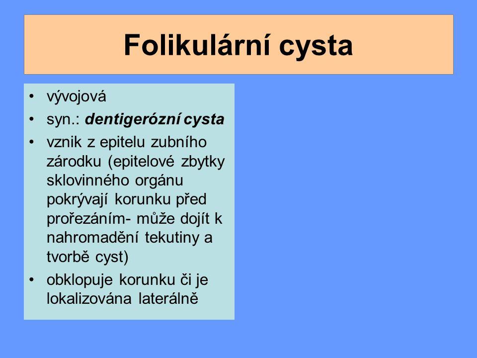 Folikulární cysta vývojová syn.: dentigerózní cysta