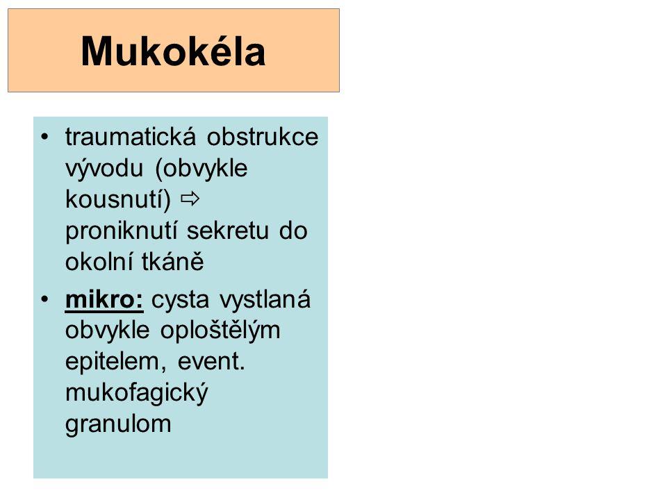 Mukokéla traumatická obstrukce vývodu (obvykle kousnutí)  proniknutí sekretu do okolní tkáně.