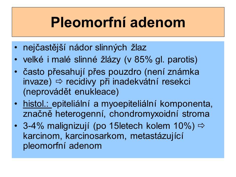 Pleomorfní adenom nejčastější nádor slinných žlaz