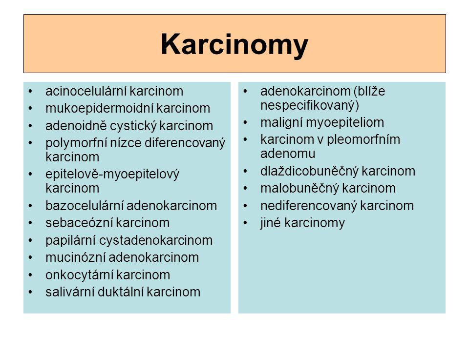 Karcinomy acinocelulární karcinom mukoepidermoidní karcinom