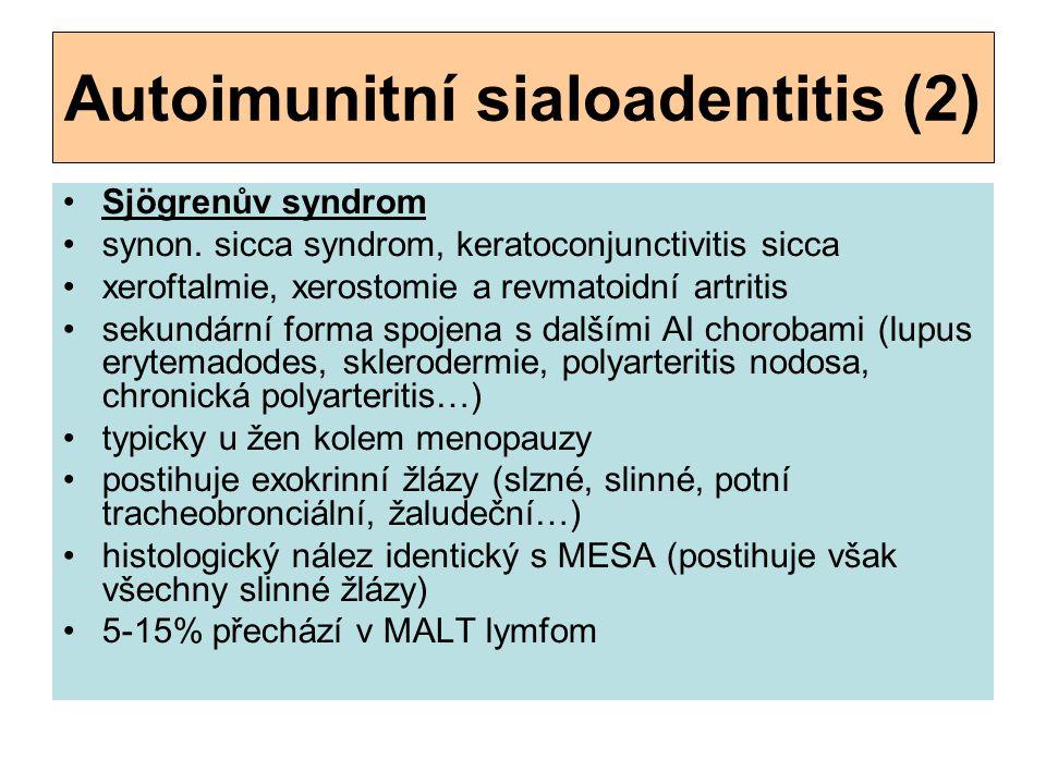 Autoimunitní sialoadentitis (2)