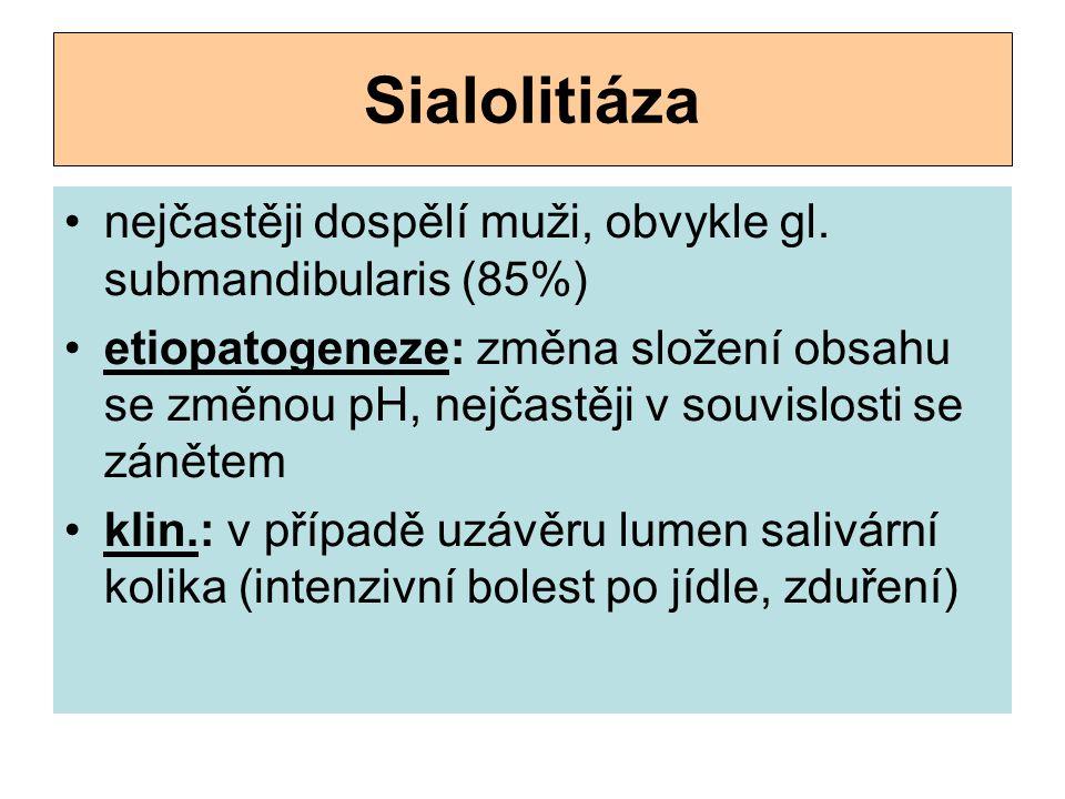 Sialolitiáza nejčastěji dospělí muži, obvykle gl. submandibularis (85%)