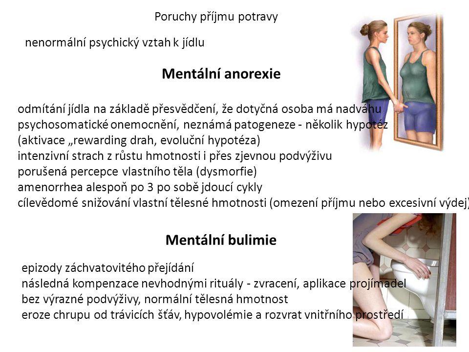Mentální anorexie Mentální bulimie Poruchy příjmu potravy