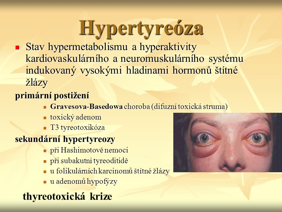 Hypertyreóza Stav hypermetabolismu a hyperaktivity kardiovaskulárního a neuromuskulárního systému indukovaný vysokými hladinami hormonů štítné žlázy.