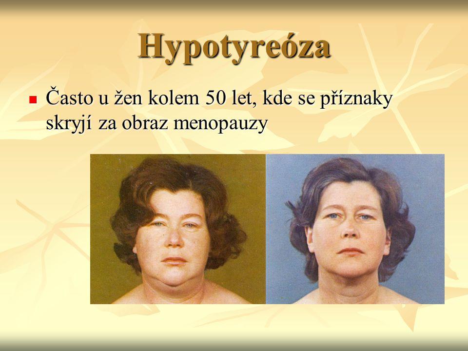 Hypotyreóza Často u žen kolem 50 let, kde se příznaky skryjí za obraz menopauzy