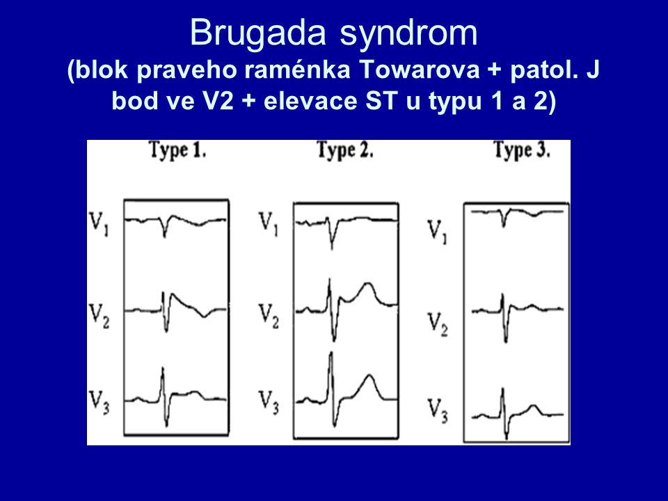 Brugada syndrom (blok praveho raménka Towarova + patol