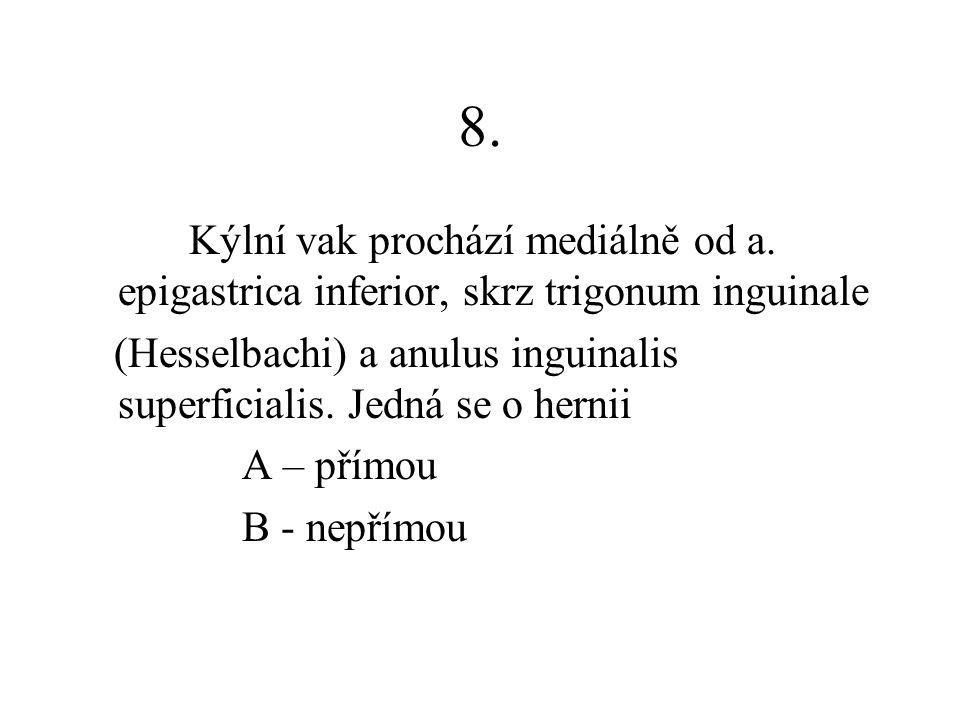 8. Kýlní vak prochází mediálně od a. epigastrica inferior, skrz trigonum inguinale.