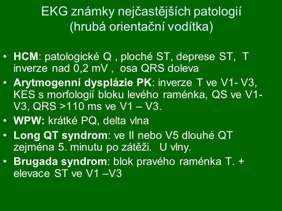 EKG známky nejčastějších patologií (hrubá orientační vodítka)