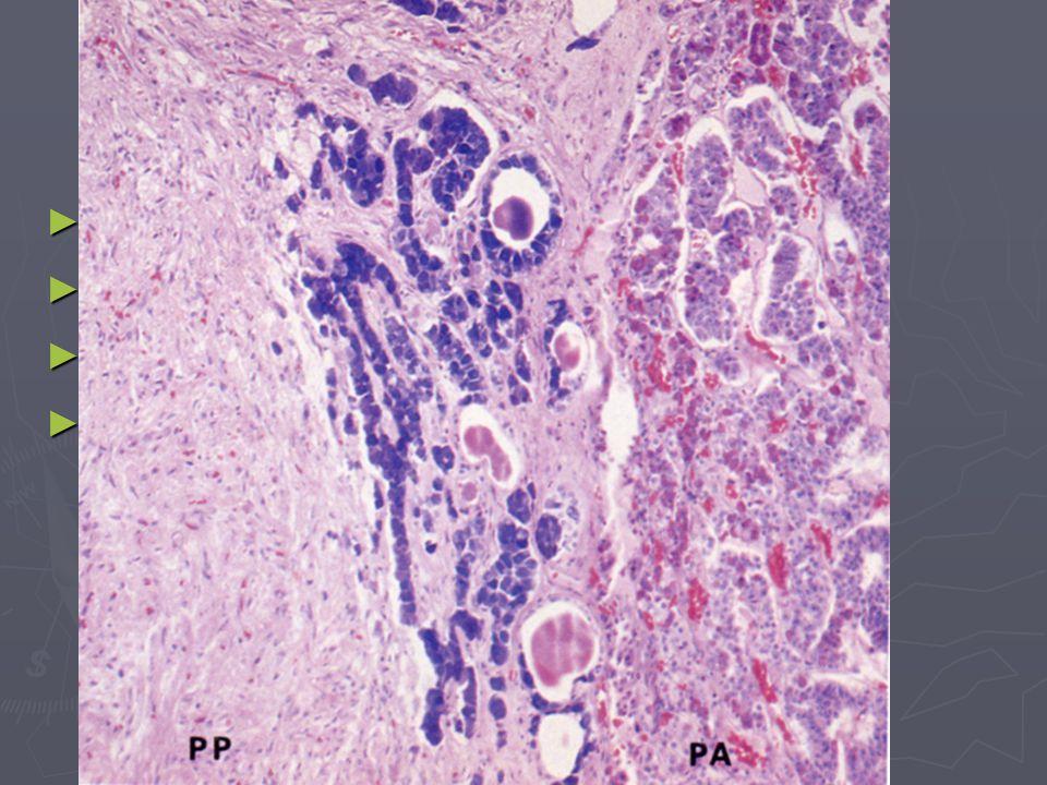 Pars intermedia rudimentární buňky tvoří trámce bazofilní bb