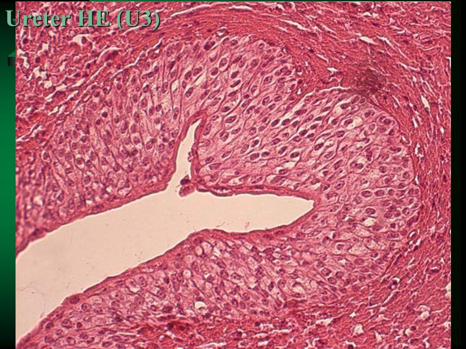 Ureter HE (U3)