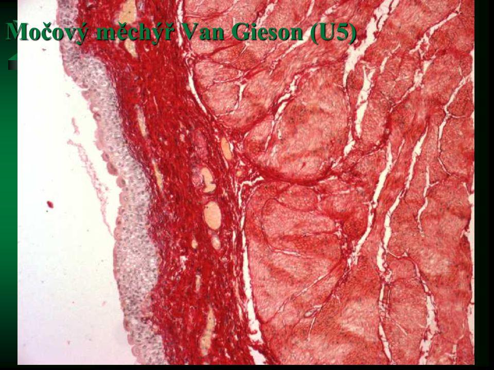 Močový měchýř Van Gieson (U5)