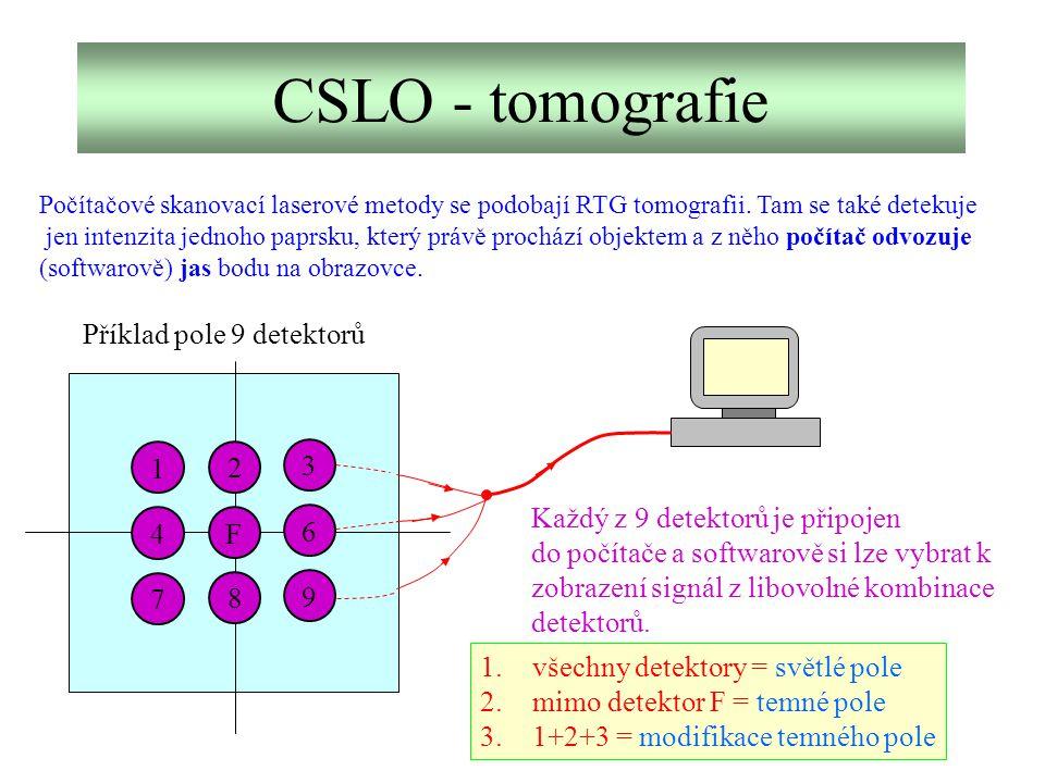 CSLO - tomografie Příklad pole 9 detektorů 1 2 3