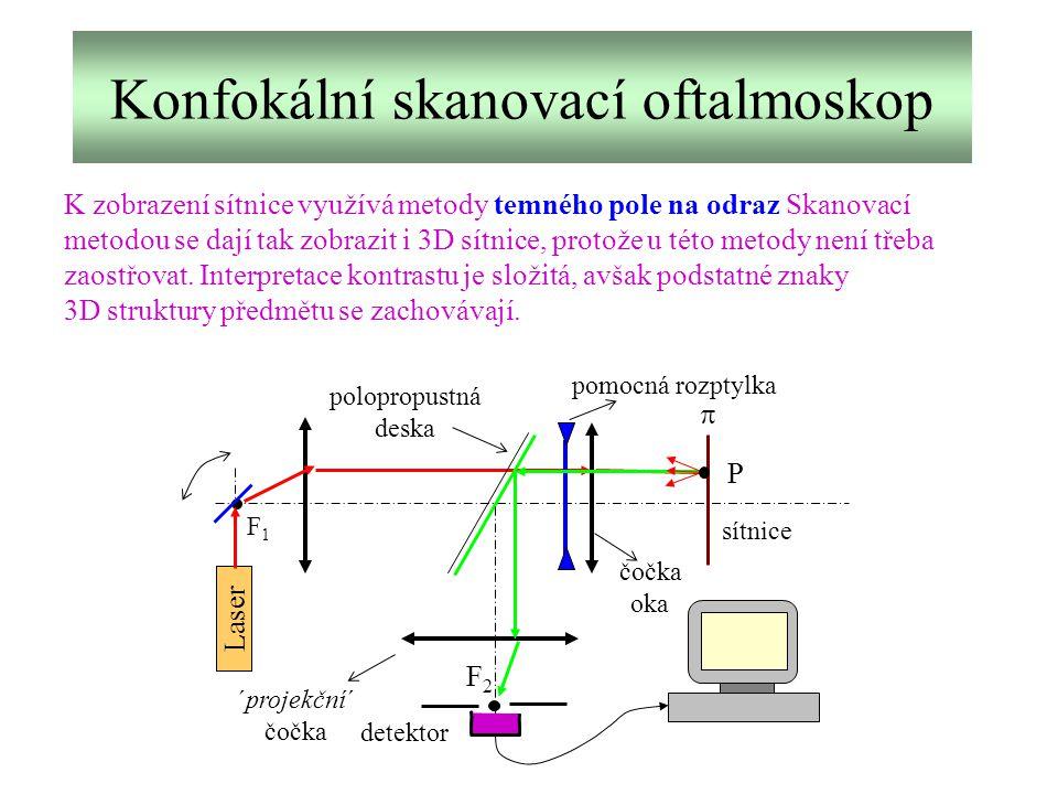 Konfokální skanovací oftalmoskop