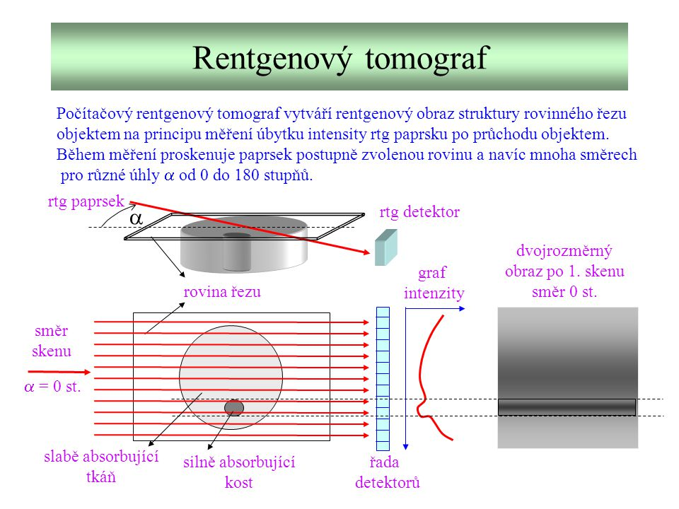 Rentgenový tomograf Počítačový rentgenový tomograf vytváří rentgenový obraz struktury rovinného řezu.