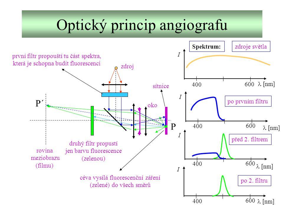 Optický princip angiografu