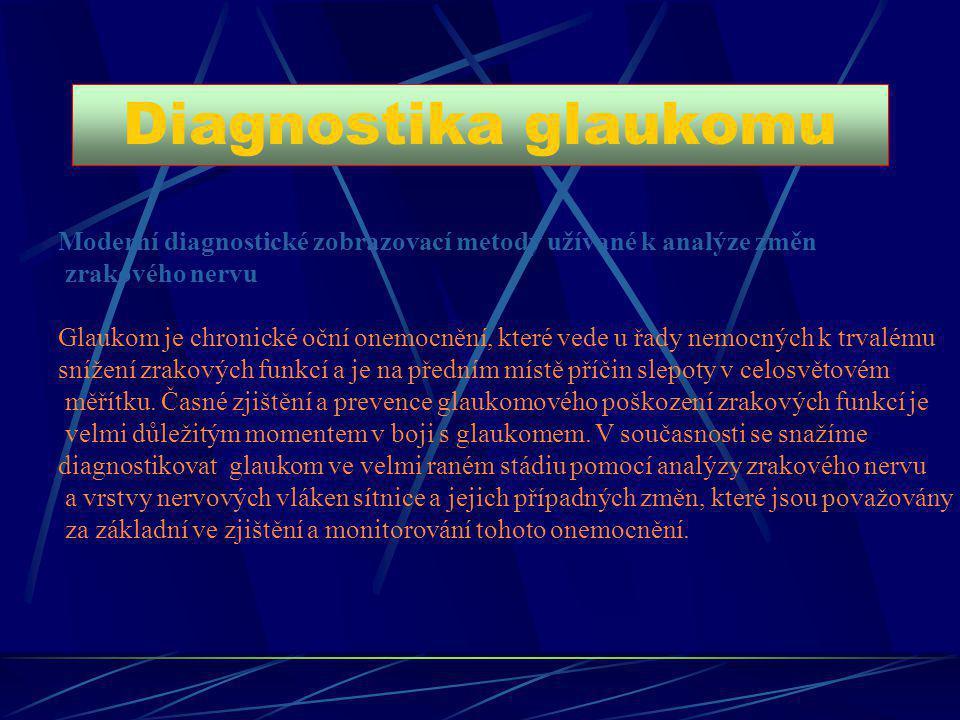 Diagnostika glaukomu Moderní diagnostické zobrazovací metody užívané k analýze změn. zrakového nervu.