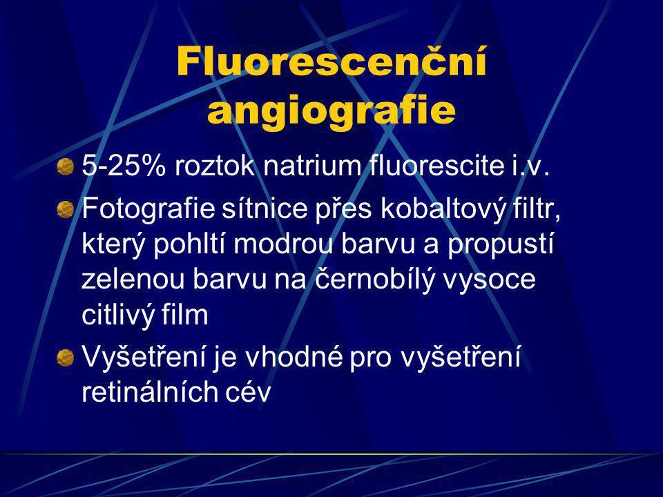 Fluorescenční angiografie
