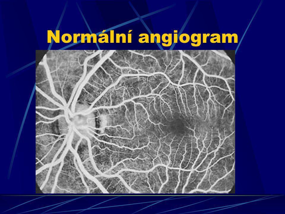 Normální angiogram