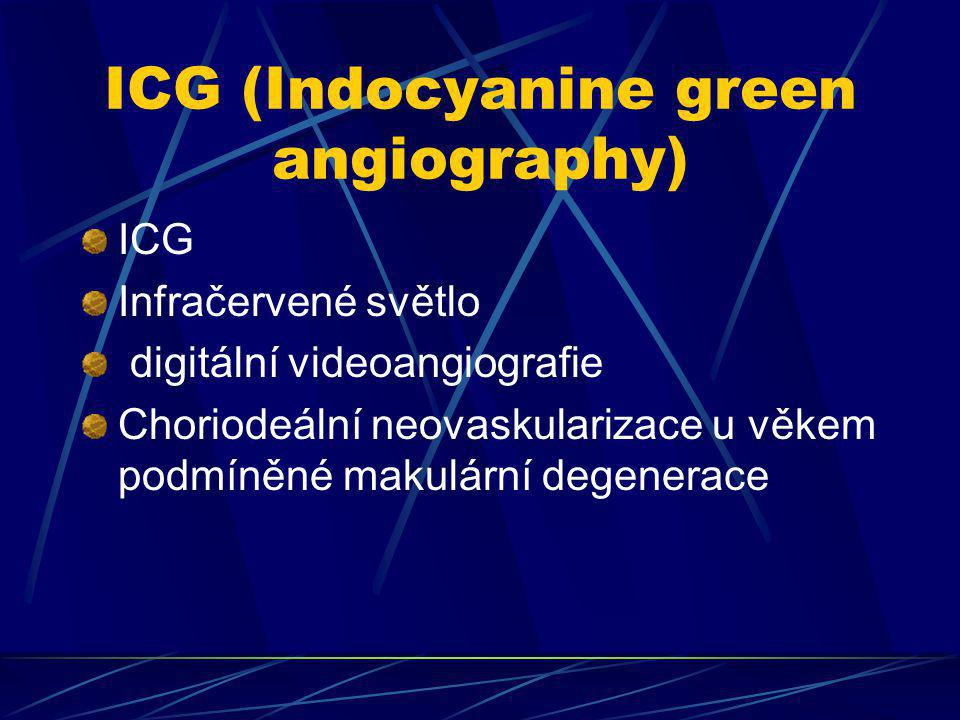 ICG (Indocyanine green angiography)
