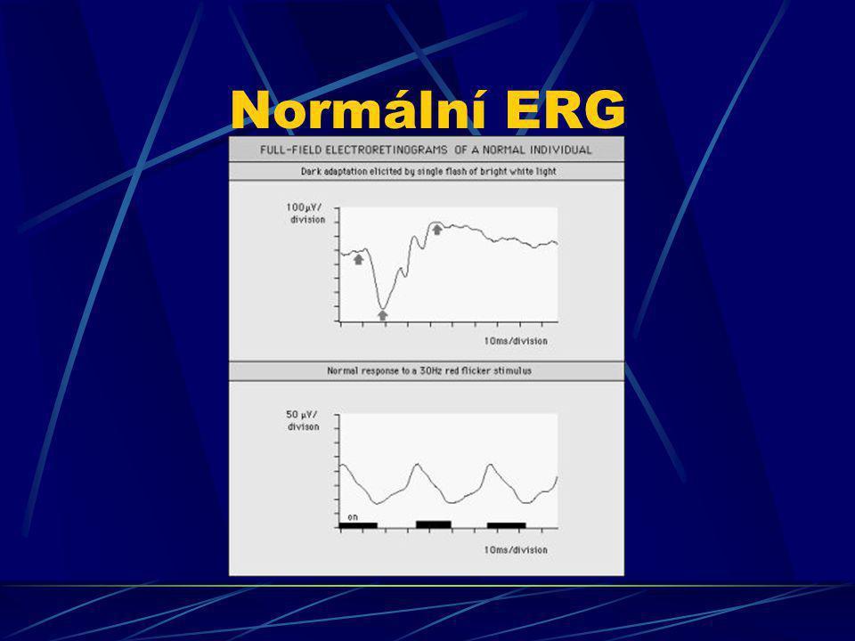 Normální ERG