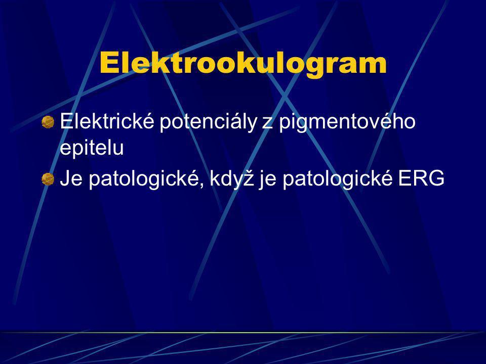 Elektrookulogram Elektrické potenciály z pigmentového epitelu