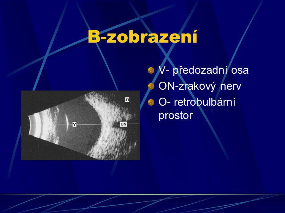 B-zobrazení V- předozadní osa ON-zrakový nerv O- retrobulbární prostor