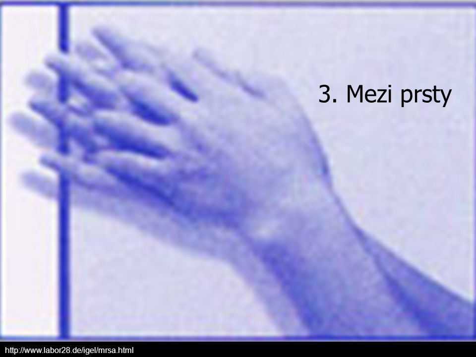 3. Mezi prsty http://www.labor28.de/igel/mrsa.html